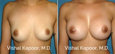 Patient 67 Front View Breast Augmentation Beverly Hills Cosmetic Plastic Surgery Doc
