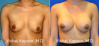 Patient 68 Front View Breast Augmentation Beverly Hills Cosmetic Plastic Surgery Doc