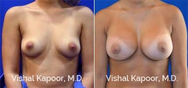 Patient 69 Front View Breast Augmentation Beverly Hills Cosmetic Plastic Surgery Doc