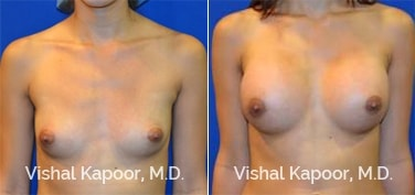 Patient 70 Front View Breast Augmentation Beverly Hills Cosmetic Plastic Surgery Doc