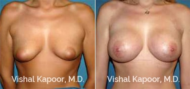 Patient 71 Front View Breast Augmentation Beverly Hills Cosmetic Plastic Surgery Doc