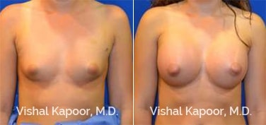 Patient 74 Front View Breast Augmentation Beverly Hills Cosmetic Plastic Surgery Doc