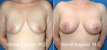 Patient 10 Front View Breast Augmentation Beverly Hills Cosmetic Plastic Surgery Doc