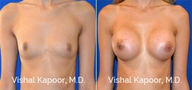 Patient 77 Front View Breast Augmentation Beverly Hills Cosmetic Plastic Surgery Doc