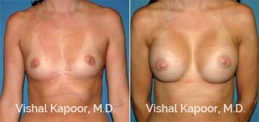 Patient 79 Front View Breast Augmentation Beverly Hills Cosmetic Plastic Surgery Doc