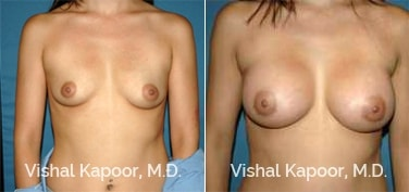 Patient 81 Front View Breast Augmentation Beverly Hills Cosmetic Plastic Surgery Doc