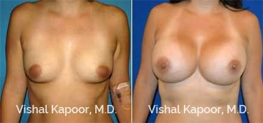 Patient 82 Front View Breast Augmentation Beverly Hills Cosmetic Plastic Surgery Doc