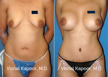 Patient 02 Front View Breast Augmentation Beverly Hills Cosmetic Plastic Surgery Doc