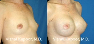 Patient 12 3/4 View Breast Augmentation Beverly Hills Cosmetic Plastic Surgery Doc
