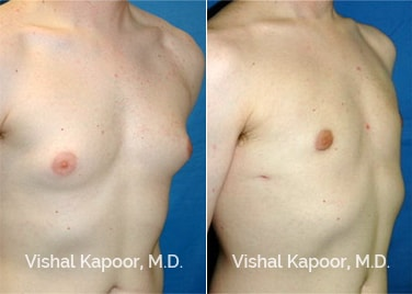 Patient 04 3/4 View Male Breast Reduction Beverly Hills Cosmetic Plastic Surgery Doc