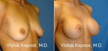 Patient 13 3/4 View Breast Augmentation Beverly Hills Cosmetic Plastic Surgery Doc