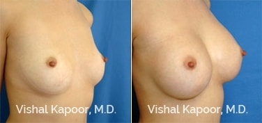 Patient 14 3/4 View Breast Augmentation Beverly Hills Cosmetic Plastic Surgery Doc