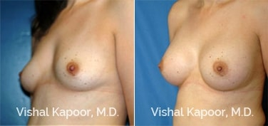 Patient 15 3/4 View Breast Augmentation Beverly Hills Cosmetic Plastic Surgery Doc