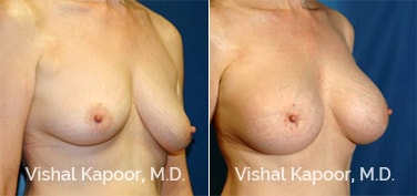 Patient 16 3/4 View Breast Augmentation Beverly Hills Cosmetic Plastic Surgery Doc