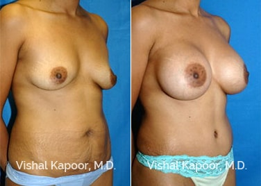Patient 01 3/4 View Tummy Tuck Beverly Hills Cosmetic Plastic Surgery Doc
