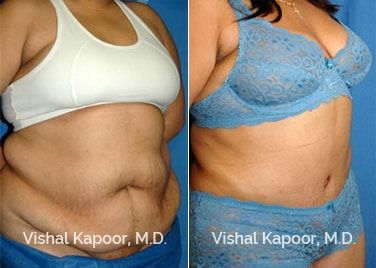 Patient 08 3/4 View Tummy Tuck Beverly Hills Cosmetic Plastic Surgery Doc