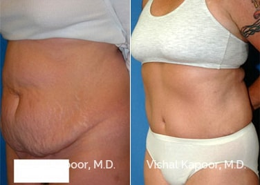 Patient 09 3/4 View Tummy Tuck Beverly Hills Cosmetic Plastic Surgery Doc
