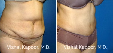 Patient 12 3/4 View Tummy Tuck Beverly Hills Cosmetic Plastic Surgery Doc
