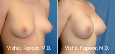 Patient 17 3/4 View Breast Augmentation Beverly Hills Cosmetic Plastic Surgery Doc