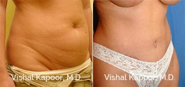 Patient 18 3/4 View Tummy Tuck Beverly Hills Cosmetic Plastic Surgery Doc