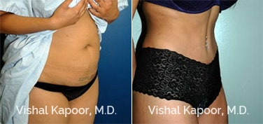 Patient 19 3/4 View Tummy Tuck Beverly Hills Cosmetic Plastic Surgery Doc