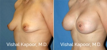 Patient 18 3/4 View Breast Augmentation Beverly Hills Cosmetic Plastic Surgery Doc
