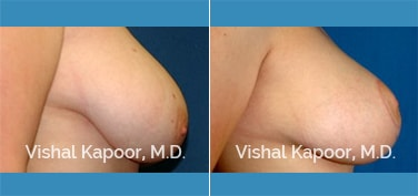 Breast Lift Patient 3