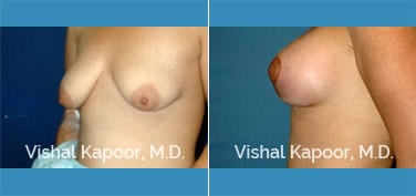 Breast Lift Patient 09