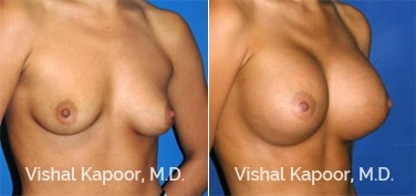 Patient 19 3/4 View Breast Augmentation Beverly Hills Cosmetic Plastic Surgery Doc