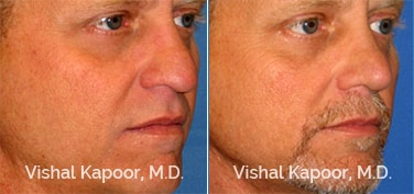 Patient 01 3/4 View Revision Rhinoplasty Beverly Hills Cosmetic Plastic Surgery Doc