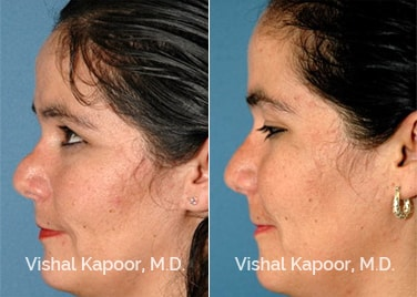 Patient 03 Side View Revision Rhinoplasty Beverly Hills Cosmetic Plastic Surgery Doc
