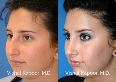 Revision Rhinoplasty Patient 5