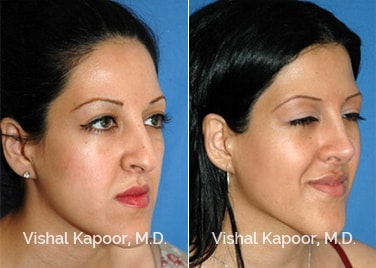 Revision Rhinoplasty Patient 6