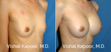 Patient 20 3/4 View Breast Augmentation Beverly Hills Cosmetic Plastic Surgery Doc