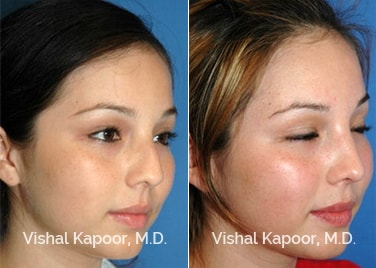 Patient 11 3/4 View Revision Rhinoplasty Beverly Hills Cosmetic Plastic Surgery Doc