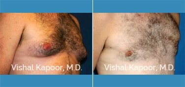 Patient 05 3/4 View Male Breast Reduction Beverly Hills Cosmetic Plastic Surgery Doc