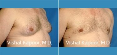 Patient 07 3/4 View Male Breast Reduction Beverly Hills Cosmetic Plastic Surgery Doc
