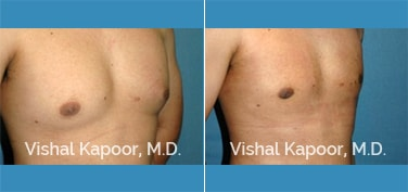 Patient 09 3/4 View Male Breast Reduction Beverly Hills Cosmetic Plastic Surgery Doc