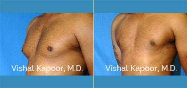 Patient 10 3/4 View Male Breast Reduction Beverly Hills Cosmetic Plastic Surgery Doc