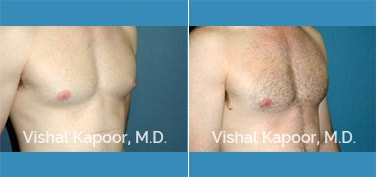 Patient 12 3/4 View Male Breast Reduction Beverly Hills Cosmetic Plastic Surgery Doc