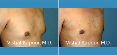 Patient 13 3/4 View Male Breast Reduction Beverly Hills Cosmetic Plastic Surgery Doc