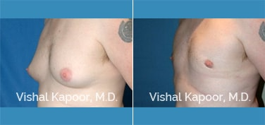 Patient 16 3/4 View Male Breast Reduction Beverly Hills Cosmetic Plastic Surgery Doc