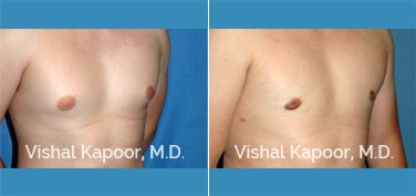 Patient 17 3/4 View Male Breast Reduction Beverly Hills Cosmetic Plastic Surgery Doc