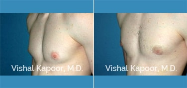 Patient 18 3/4 View Male Breast Reduction Beverly Hills Cosmetic Plastic Surgery Doc