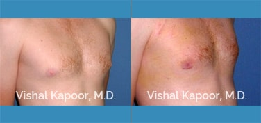 Patient 19 3/4 View Male Breast Reduction Beverly Hills Cosmetic Plastic Surgery Doc