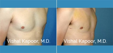 Patient 20 3/4 View Male Breast Reduction Beverly Hills Cosmetic Plastic Surgery Doc