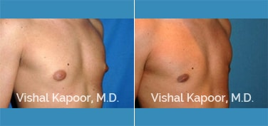 Patient 21 3/4 View Male Breast Reduction Beverly Hills Cosmetic Plastic Surgery Doc