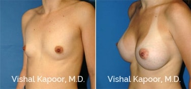 Patient 23 3/4 View Breast Augmentation Beverly Hills Cosmetic Plastic Surgery Doc