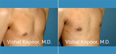 Patient 22 3/4 View Male Breast Reduction Beverly Hills Cosmetic Plastic Surgery Doc