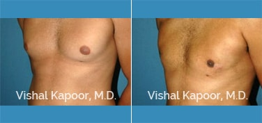 Patient 23 3/4 View Male Breast Reduction Beverly Hills Cosmetic Plastic Surgery Doc